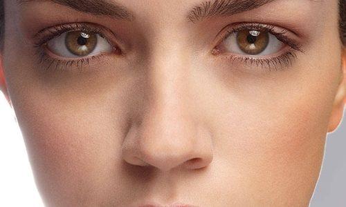 Göz altı morluklarının çözümleri nelerdir?