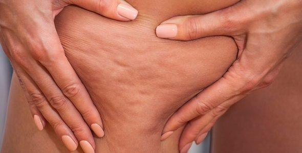 Antibiyotik tedavisi, selülitlerinize çare olabilir mi?